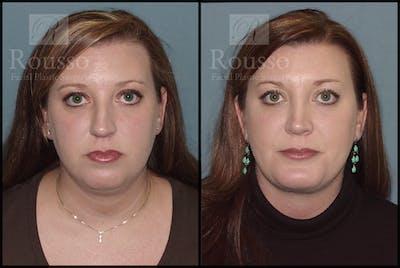 Facial Implants Gallery - Patient 2128758 - Image 2