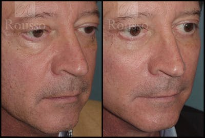 Chin/Mandibular Implants Gallery - Patient 2128757 - Image 2