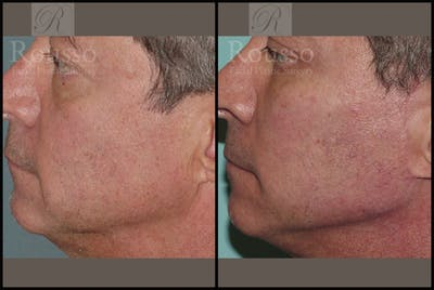 Chin/Mandibular Implants Gallery - Patient 2128757 - Image 1