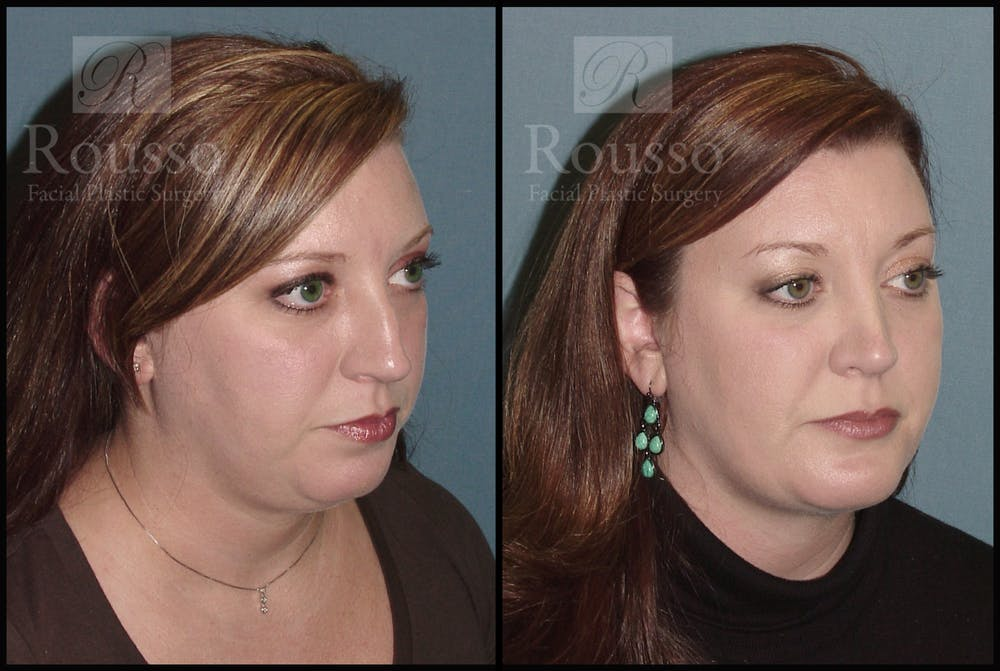 Facial Implants Gallery - Patient 2128758 - Image 3