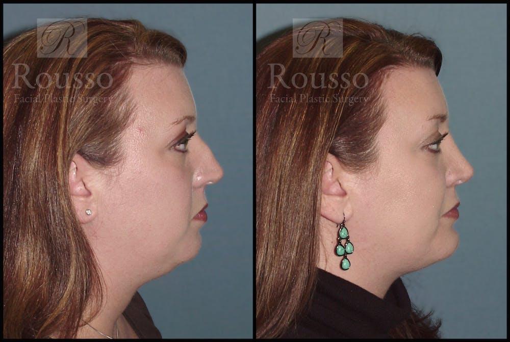 Facial Implants Gallery - Patient 2128758 - Image 1