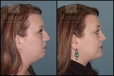 Chin/Mandibular Implants Gallery - Patient 2128758 - Image 1
