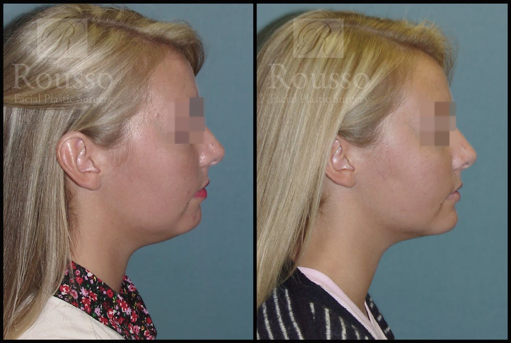 Chin/Mandibular Implants Gallery - Patient 2128759 - Image 1