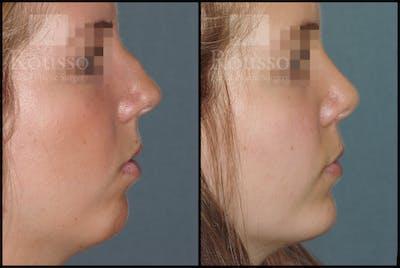 Chin/Mandibular Implants Gallery - Patient 2128760 - Image 1