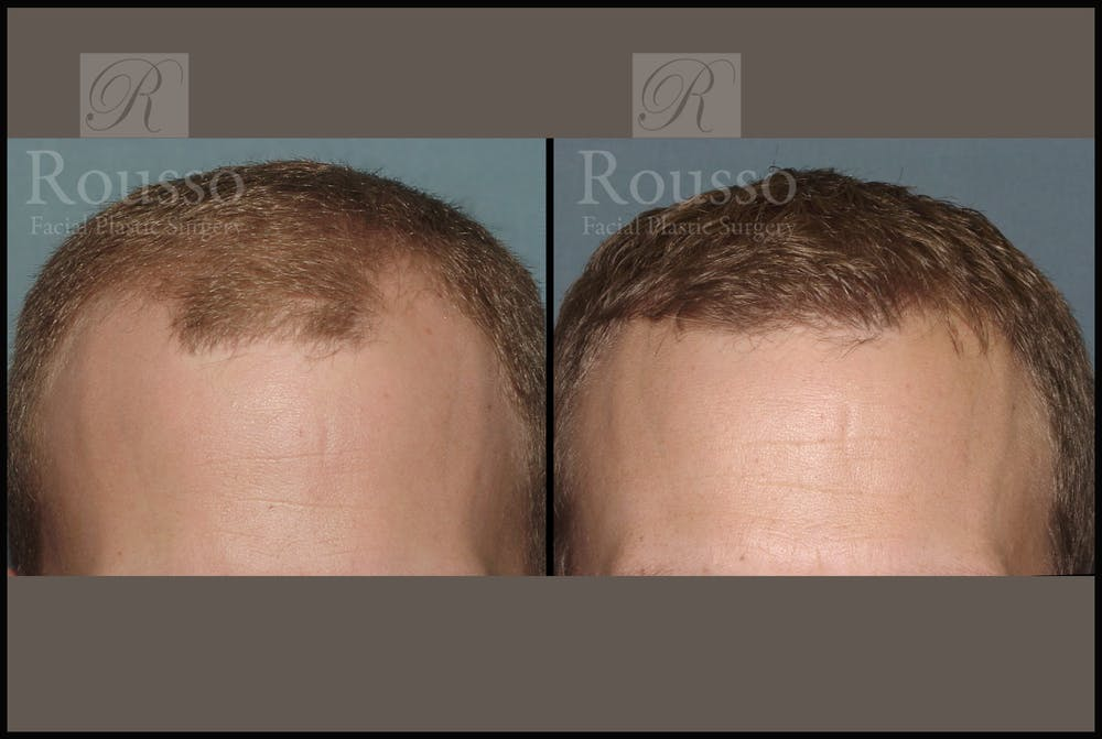 Hair Transplant Gallery - Patient 2153962 - Image 1