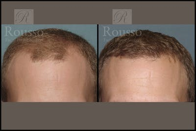Hair Gallery - Patient 2153962 - Image 1