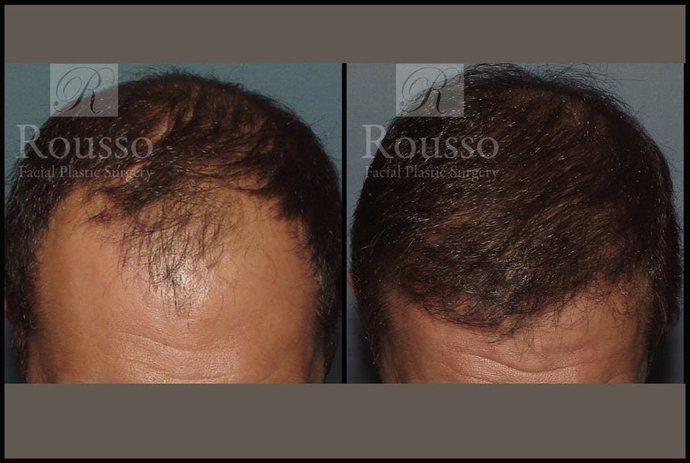 Hair Transplant Gallery - Patient 2153965 - Image 1