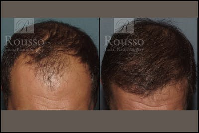 Hair Gallery - Patient 2153965 - Image 1