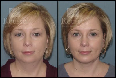 Chin/Mandibular Implants Gallery - Patient 2205360 - Image 1