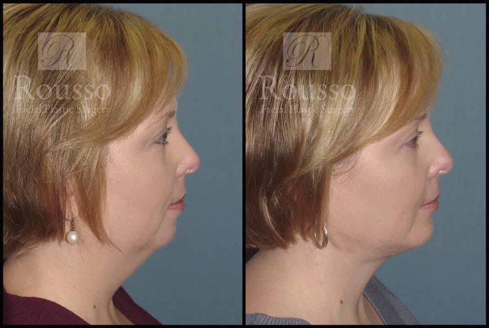Chin/Mandibular Implants Gallery - Patient 2205360 - Image 2