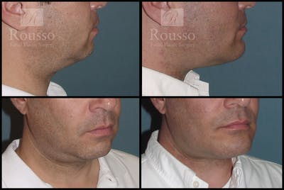 Chin/Mandibular Implants Gallery - Patient 2205361 - Image 1