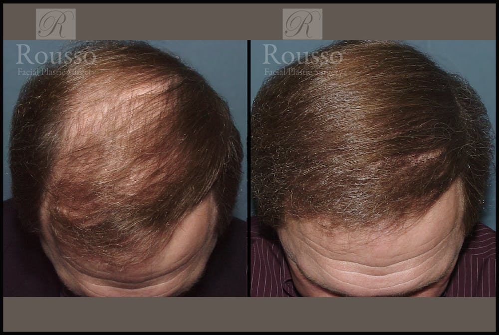 Hair Transplant Gallery - Patient 2205365 - Image 1