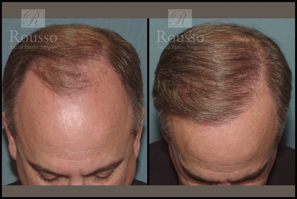 Hair Transplant Gallery - Patient 2205366 - Image 1