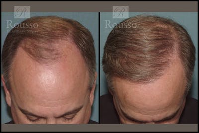 Hair Gallery - Patient 2205366 - Image 1