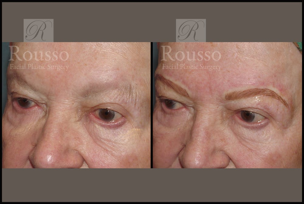 Microblading Gallery - Patient 2205367 - Image 1