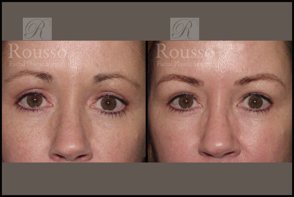 Microblading Gallery - Patient 2205368 - Image 1