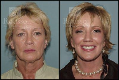 Facelift Gallery - Patient 1993263 - Image 1