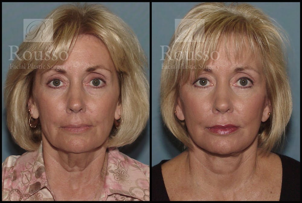 Facelift Gallery - Patient 1993265 - Image 3