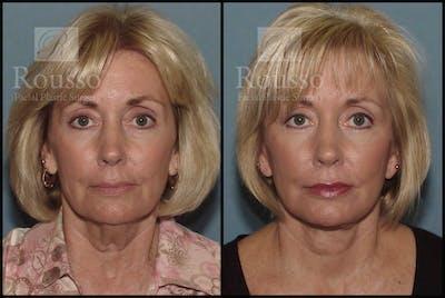 Facelift Gallery - Patient 1993265 - Image 1