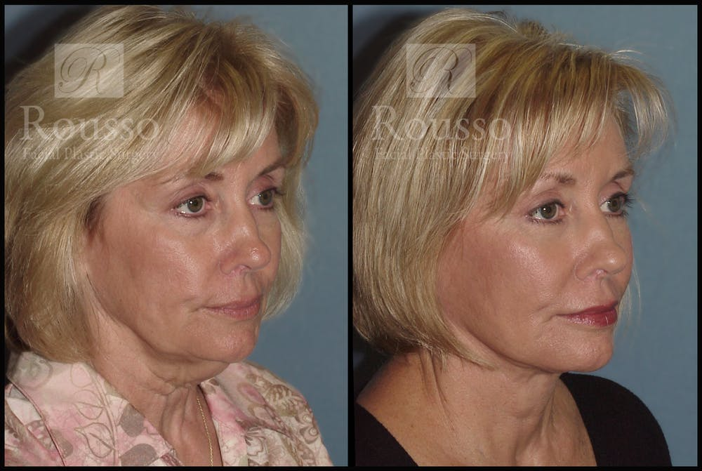 Facelift Gallery - Patient 1993265 - Image 2