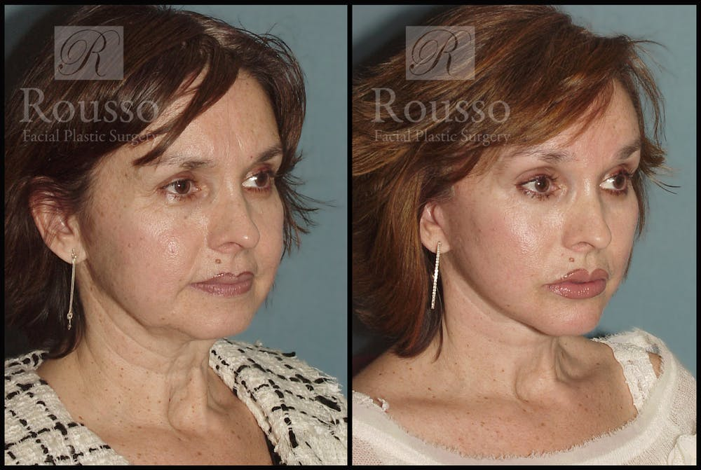 Facelift Gallery - Patient 1993269 - Image 2