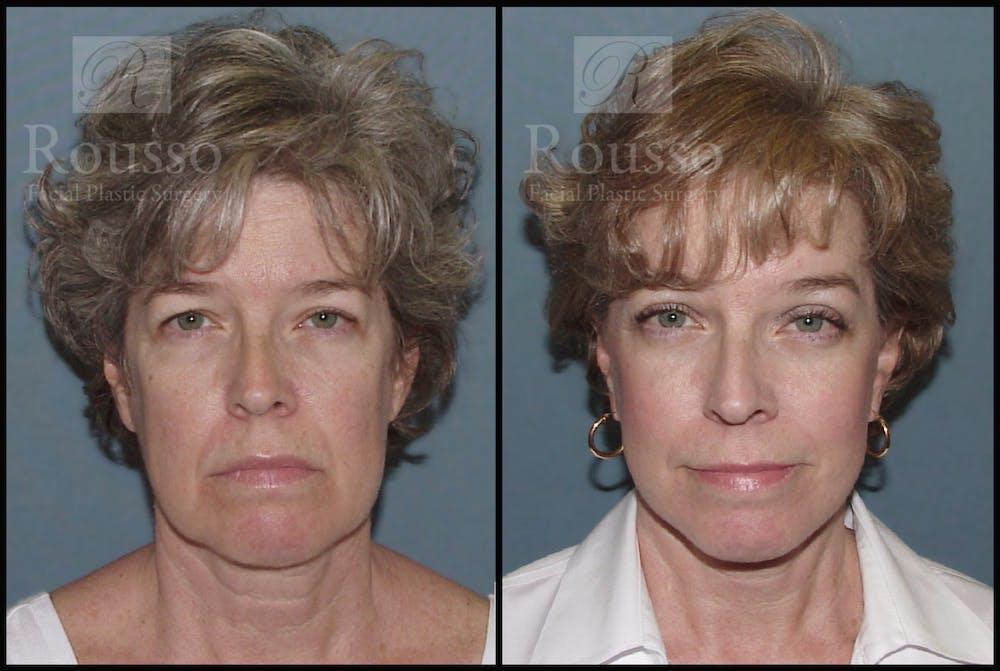 Facelift Gallery - Patient 1993274 - Image 3