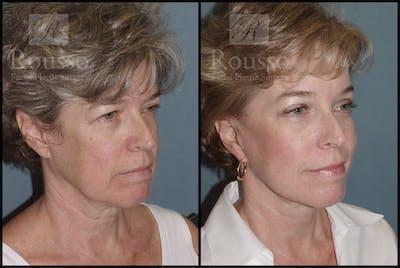 Facelift Gallery - Patient 1993274 - Image 2
