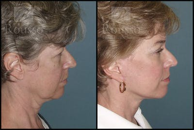 Facelift Gallery - Patient 1993274 - Image 1