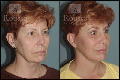 Facelift Gallery - Patient 1993292 - Image 2
