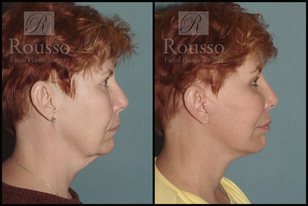 Facelift Gallery - Patient 1993292 - Image 1