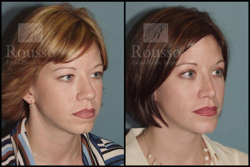 Blepharoplasty Gallery - Patient 1993307 - Image 3