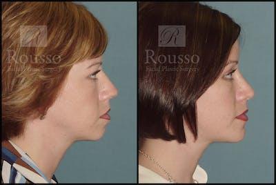 Blepharoplasty Gallery - Patient 1993307 - Image 2