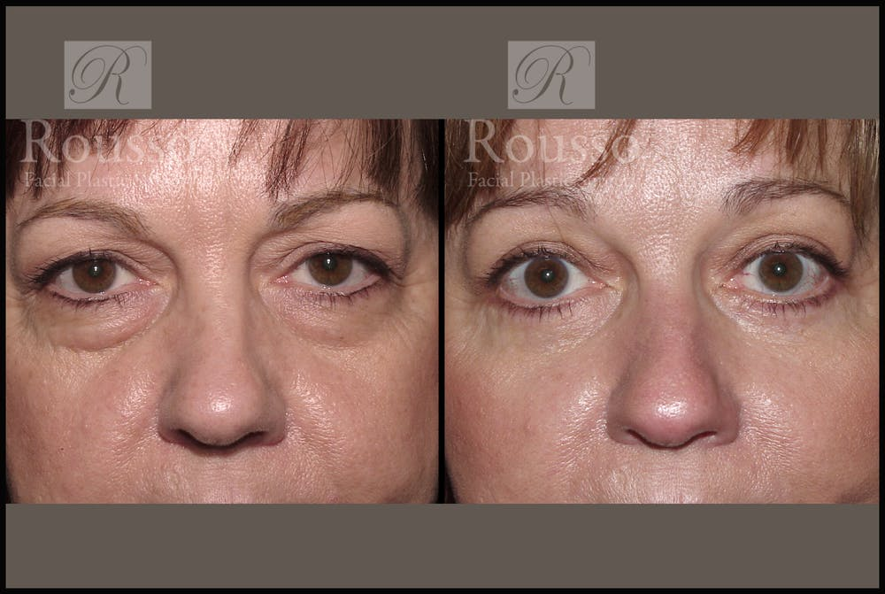 Blepharoplasty Gallery - Patient 1993314 - Image 1
