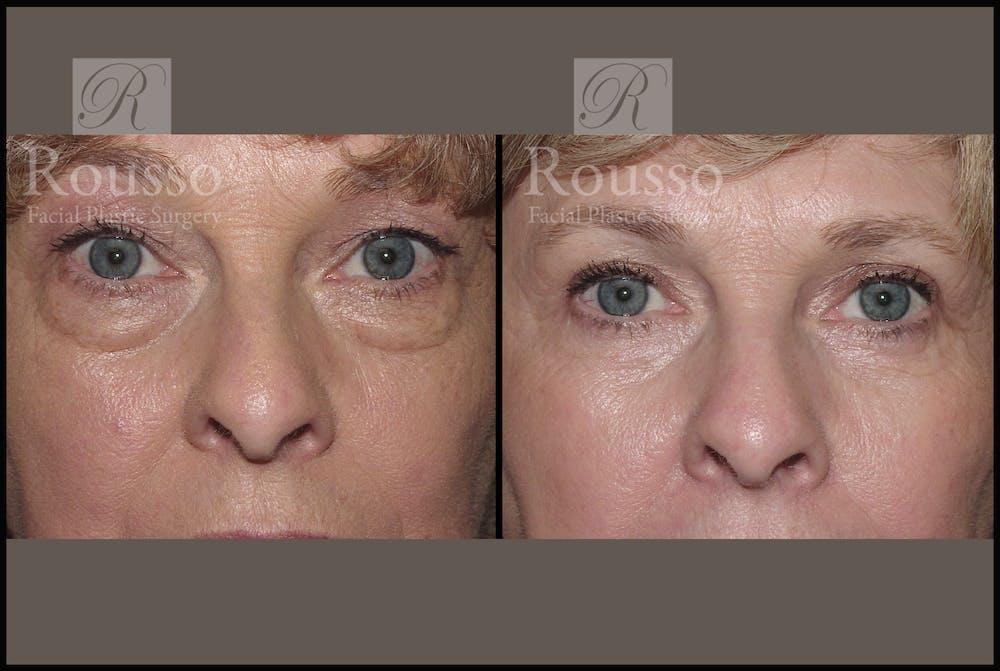 Blepharoplasty Gallery - Patient 1993309 - Image 1