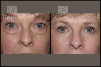 Blepharoplasty Gallery - Patient 1993309 - Image 1