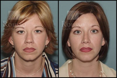 Blepharoplasty Gallery - Patient 1993307 - Image 1