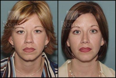Blepharoplasty Gallery - Patient 1993307 - Image 1