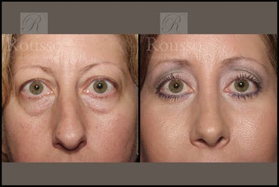 Blepharoplasty Gallery - Patient 2029502 - Image 1