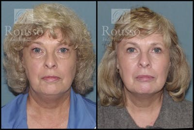 Blepharoplasty Gallery - Patient 2216936 - Image 1