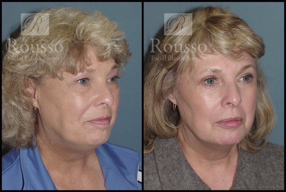 Blepharoplasty Gallery - Patient 2216936 - Image 2