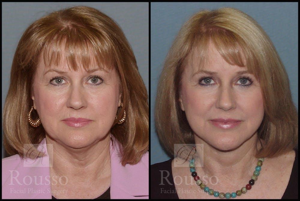 Facelift Gallery - Patient 2216940 - Image 3