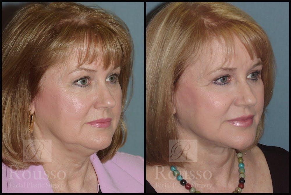 Facelift Gallery - Patient 2216940 - Image 2
