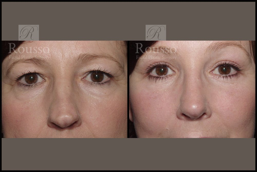 Blepharoplasty Gallery - Patient 2236571 - Image 1
