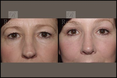 Blepharoplasty Gallery - Patient 2236571 - Image 1