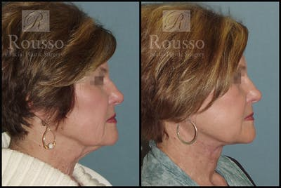 Facelift Gallery - Patient 2236644 - Image 1