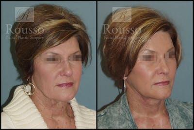 Facelift Gallery - Patient 2236644 - Image 1