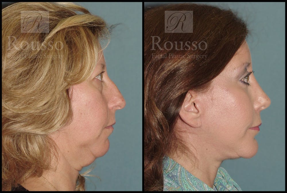 Facelift Gallery - Patient 2237786 - Image 1