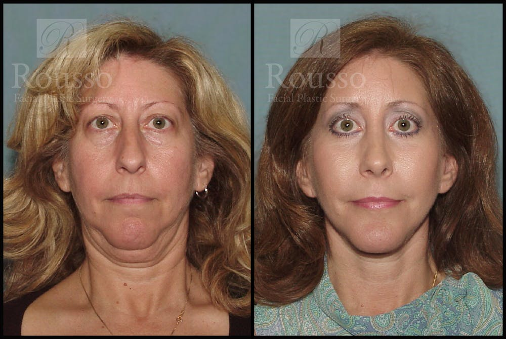 Facelift Gallery - Patient 2237786 - Image 3