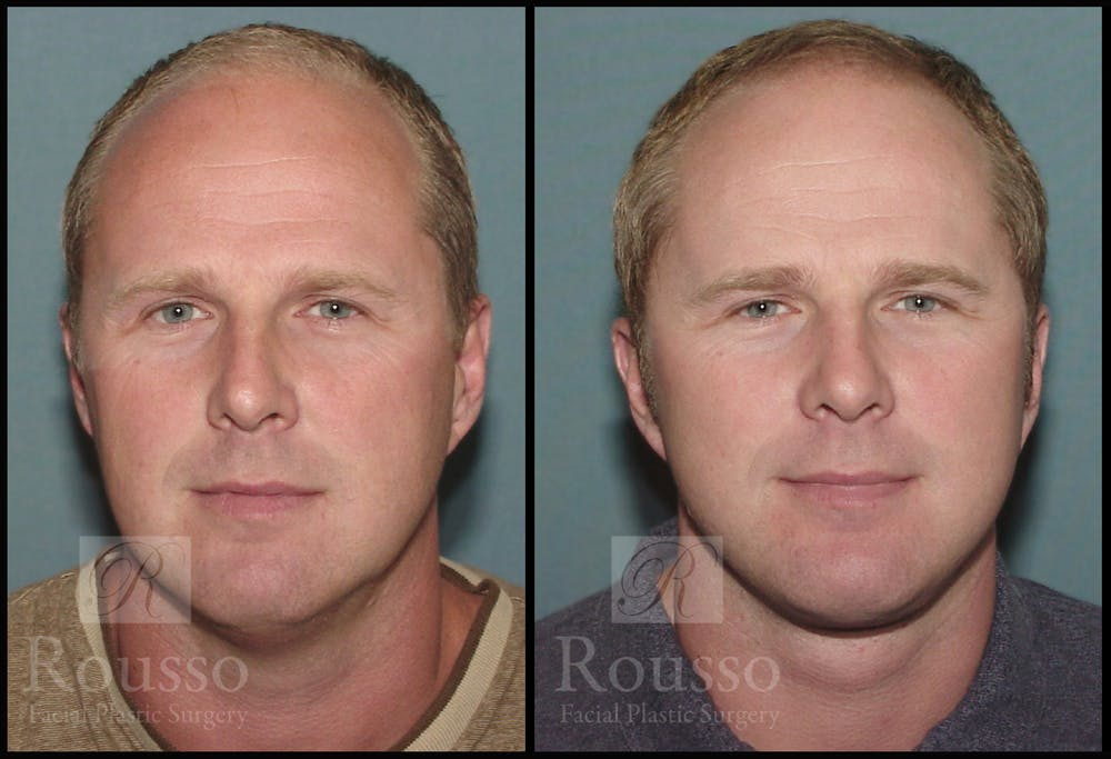 Male Facelift Gallery - Patient 2236799 - Image 1