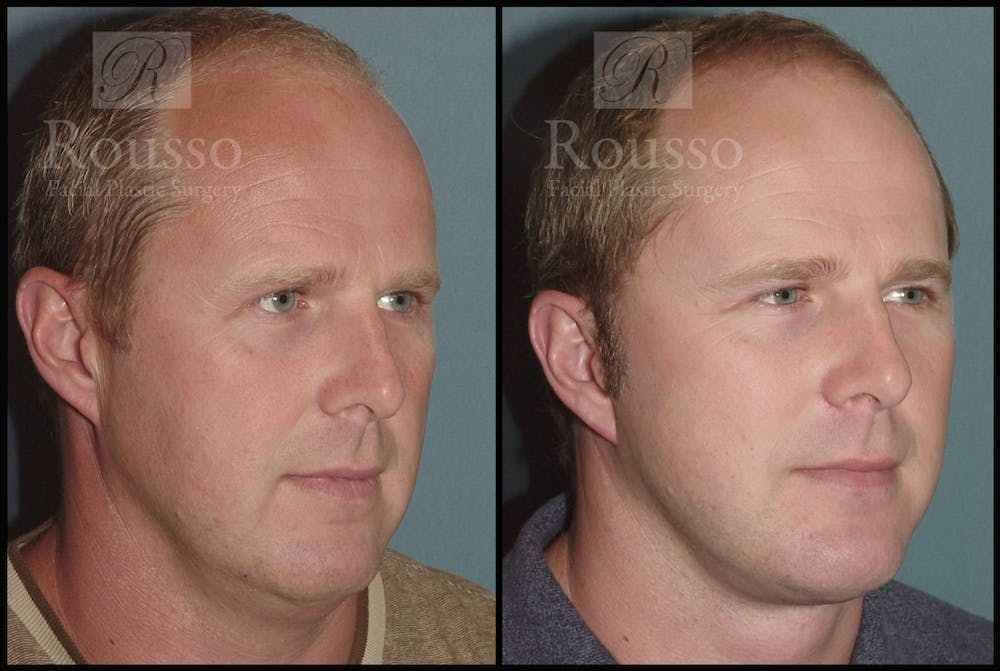 Male Facelift Gallery - Patient 2236799 - Image 2